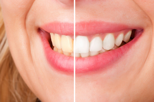 teeth Whitening plymouth dentist
